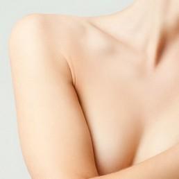 Radiesse Hyaluronbehandlung bei Knitterfaeltchen und Hautalterung