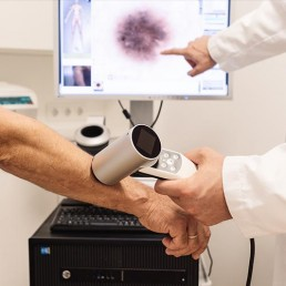 hautkrebs screening